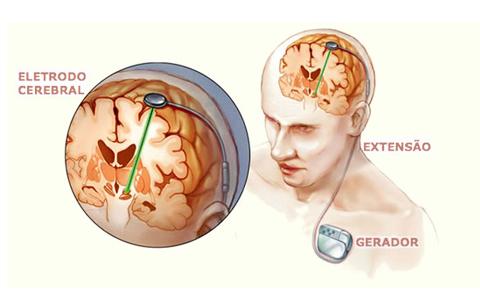 estimulo_cerebrais_epilepsia